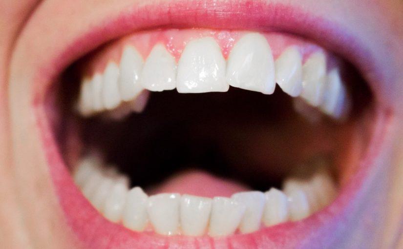Aktualna technika stosowana w salonach stomatologii estetycznej może sprawić, że odzyskamy ładny uśmiech.